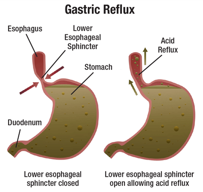 The surprising new food rules to banish acid reflux ...